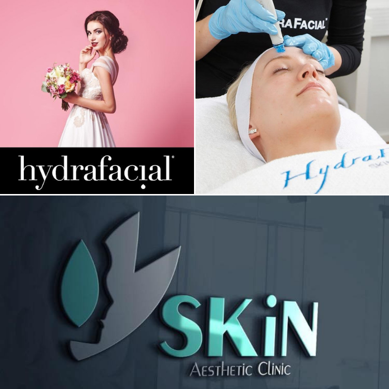 WIN A Hydrafacial MD At SKiN Aesthetic Clinic | Wedding Journal