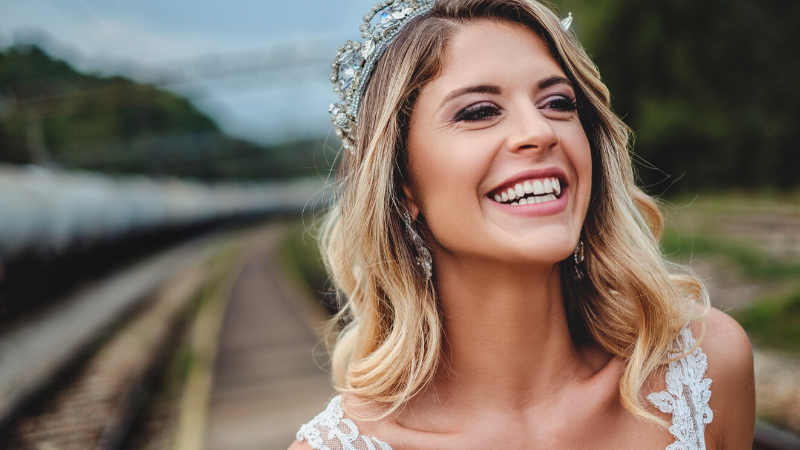 bridal-smile